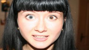 Moça com heterocromia.